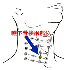 呼吸 音 聴取 部位